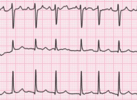 EKG som viser atrieflimmer