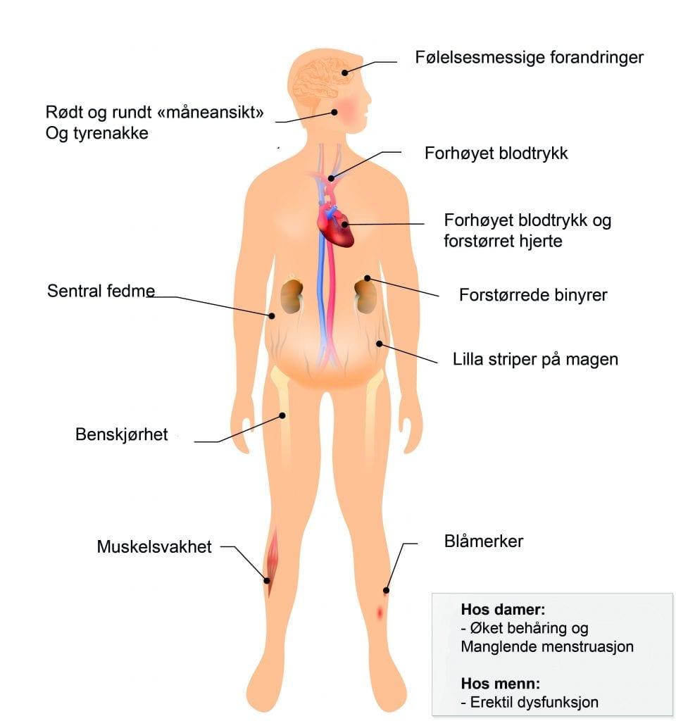 Cushings syndrom