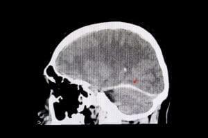 Traumatisk hjerneskade
