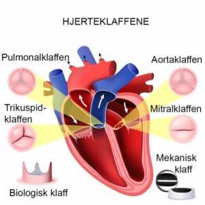 Bildet viser hjertets fire klaffer.