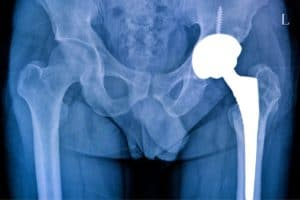 hoftebrudd